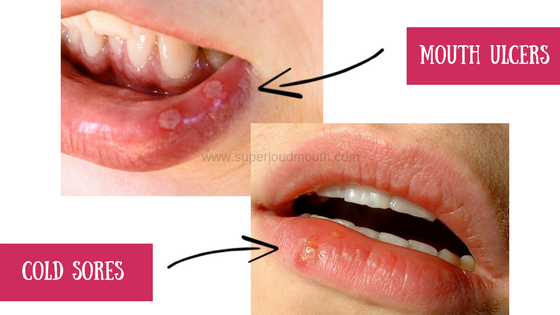 how to cure mouth ulcers