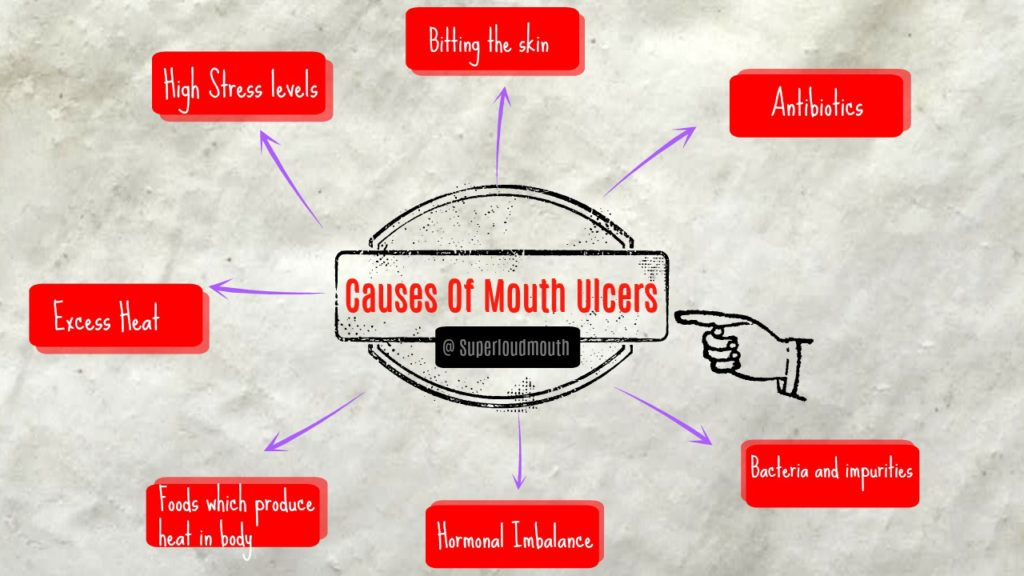 home remedies to reduce mouth ulcers