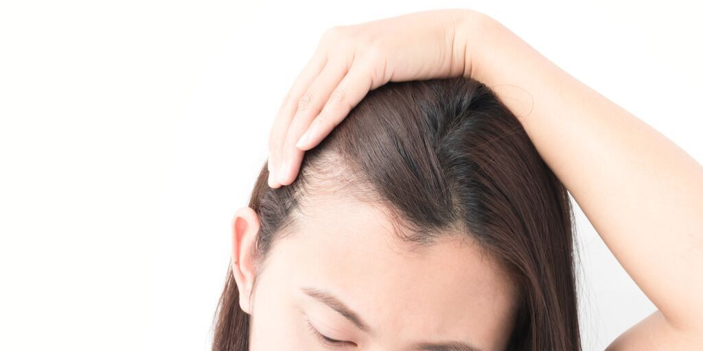 and Hair asian women loss